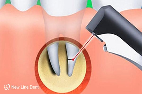Лечение гранулирующего периодонтита